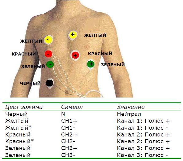 Схема наложения электродов